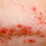 Acnetherapie huidtherapeut Arnhem