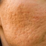 acne littekens arnhem