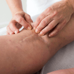 Littekentherapie arnhem huidtherapeut