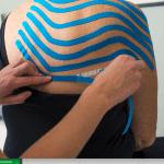 Lymfetaping oedeem arnhem
